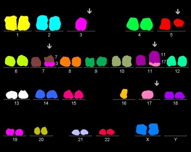 Karyotype of bone marrow cells of female with komplex chromosomal rearrangements: